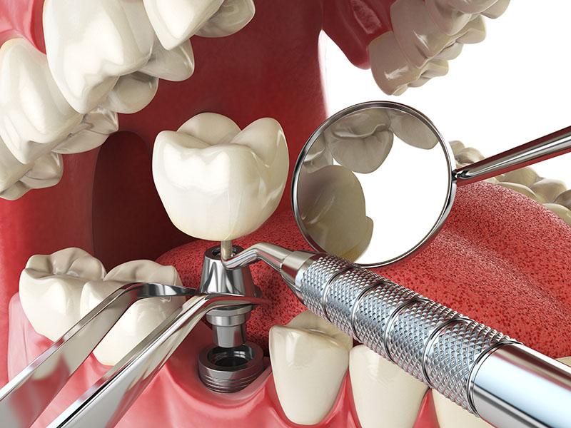 quanto-custa-para-fazer-um-implante-dentário-03