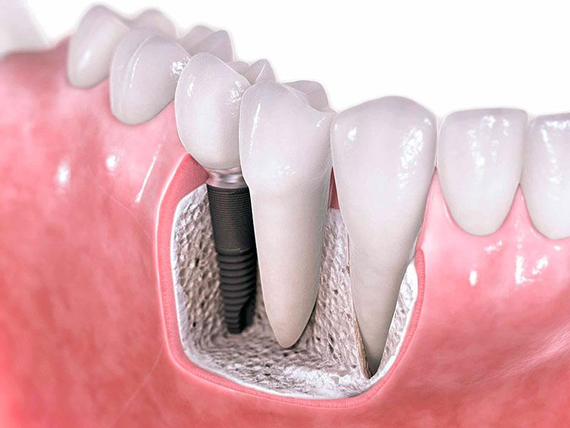 quanto-custa-um-implante-dentário-completo-02
