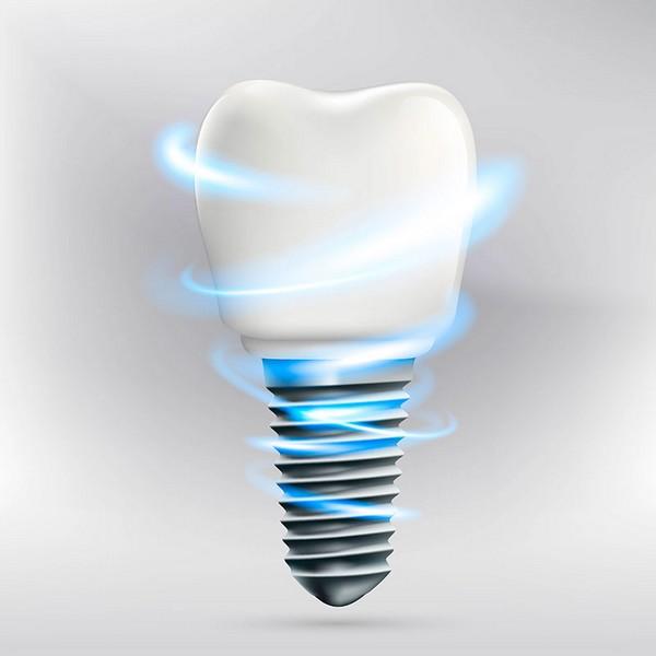 quanto-custa-um-implante-dentário-de-um-dente-03