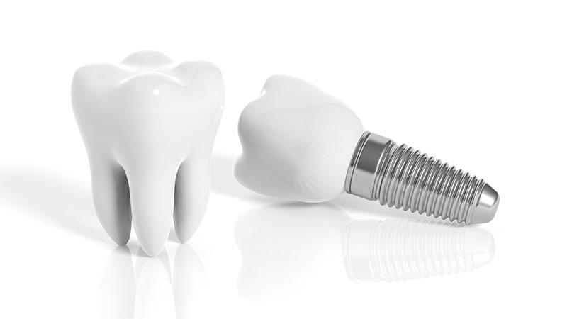 quanto-custa-uma-prótese-dentaria-02