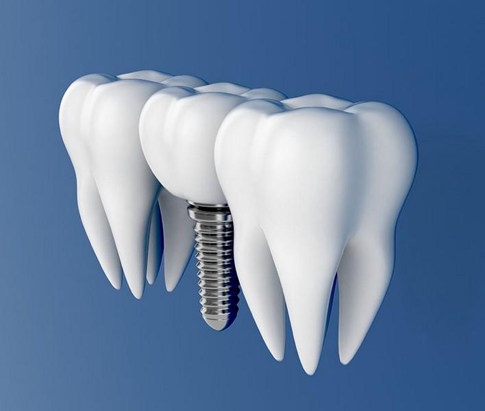quanto-custa-uma-prótese-dentaria-03