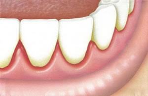 raspagem-nos-dentes-preço-01