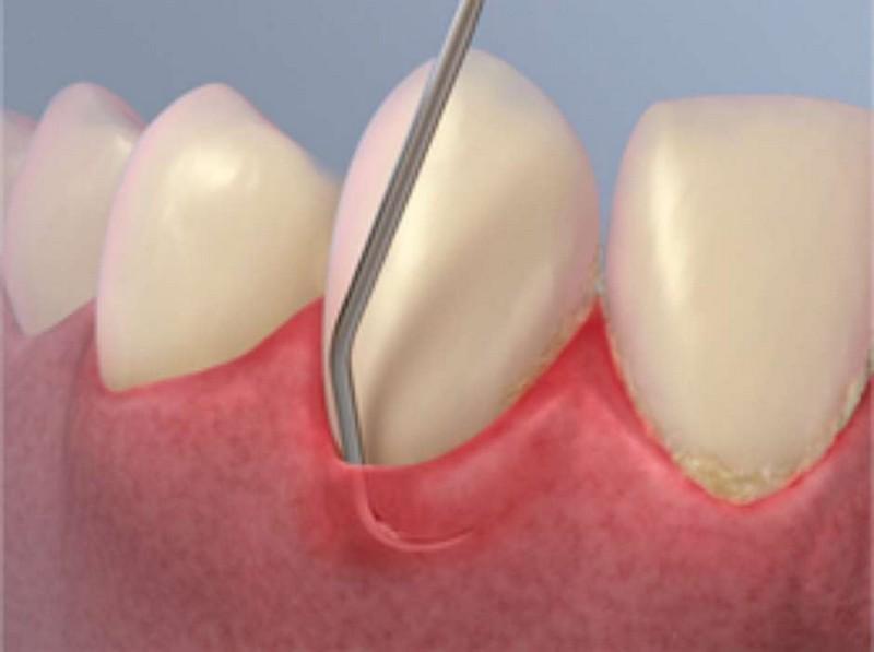 Raspagem Nos Dentes Preco Ideal Odonto