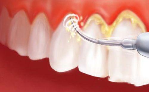 removedor-de-tártaro-dental-01