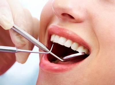 removedor-de-tártaro-dental-02