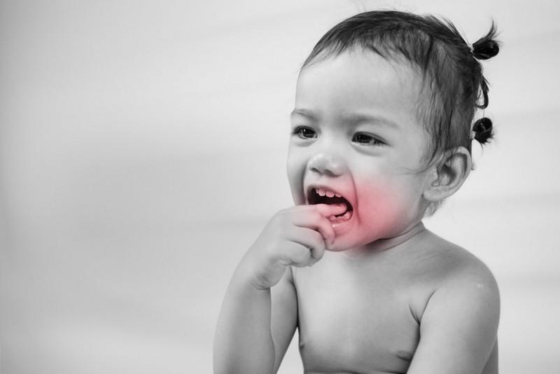 Solução-para-dor-de-dente-01