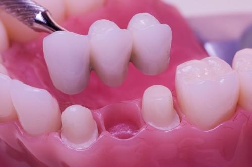 tipos-de-enxerto-ósseo-para-implante-dentário-02