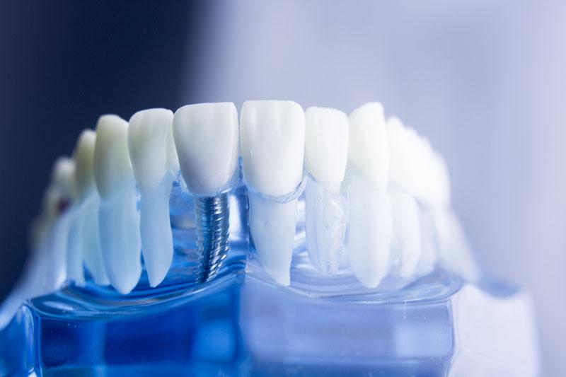 tipos-de-implantes-dentários-03