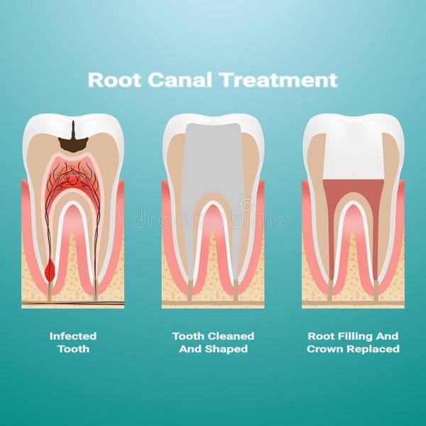 tratamento-canal-dente-03
