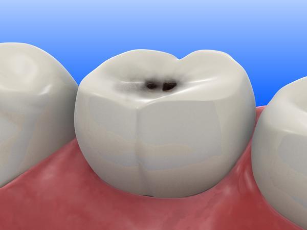 tratamento-da-cárie-dentaria-03