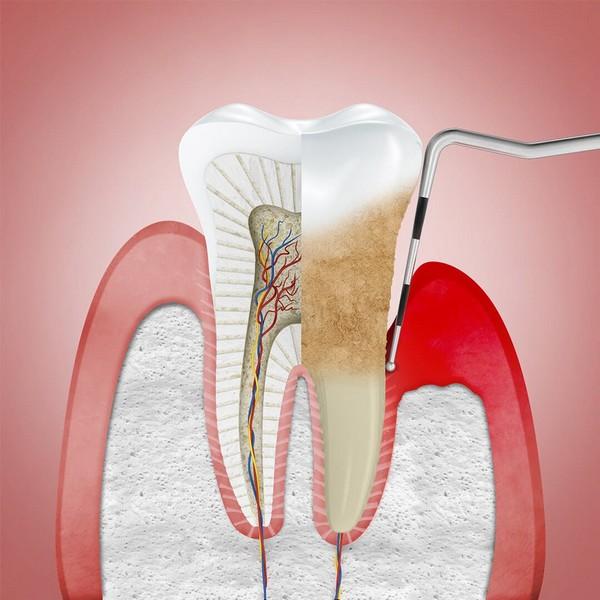 tratamento-da-periodontite-01