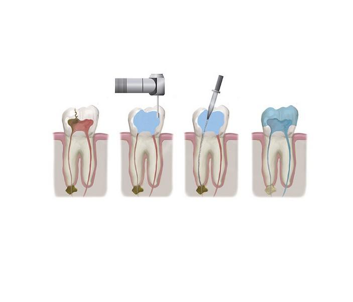 tratamento-de-canal-inchaço-no-rosto-01