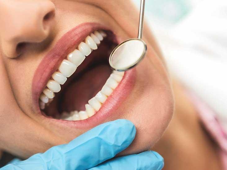 tratamento-de-cárie-dentaria-02