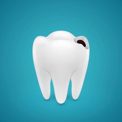 tratamento-de-cárie-dentaria-03