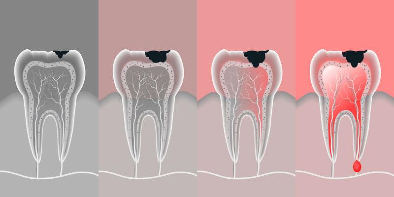 tratamento-dentário-canal-02