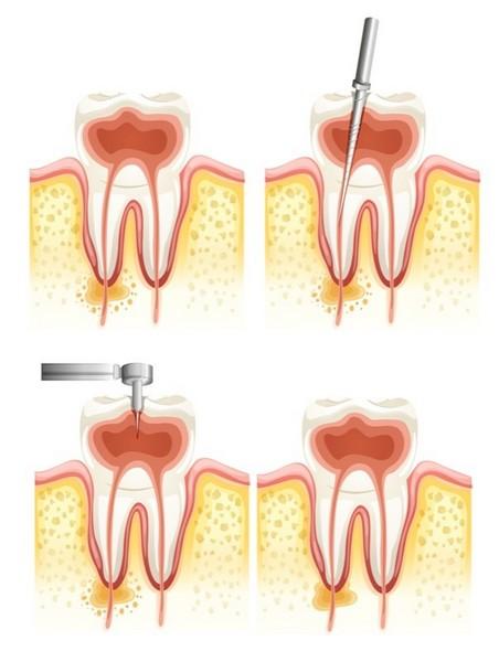 tratamento-dentário-canal-03