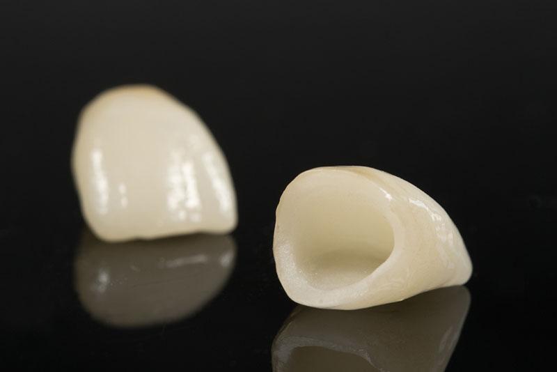 tratamento-dentário-com-porcelana-03