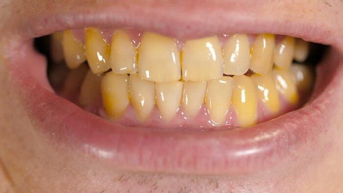 tratamento-para-dentes-amarelos-01