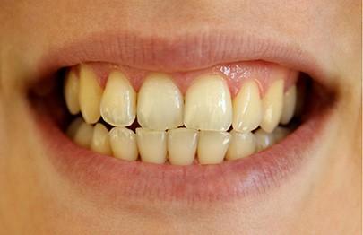 tratamento-para-dentes-amarelos-02