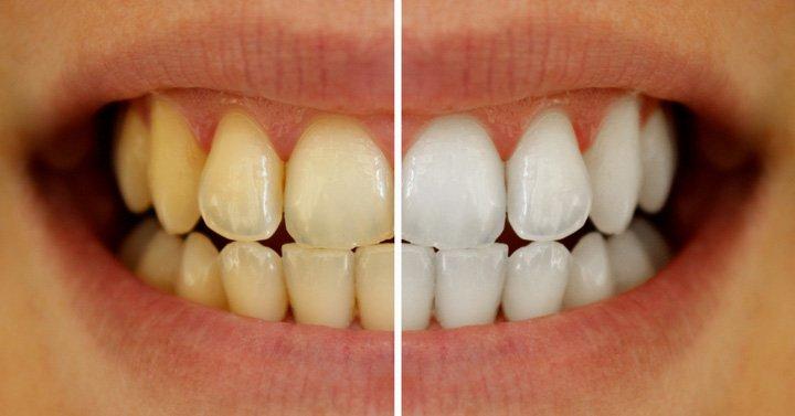 tratamento-para-dentes-amarelos-03