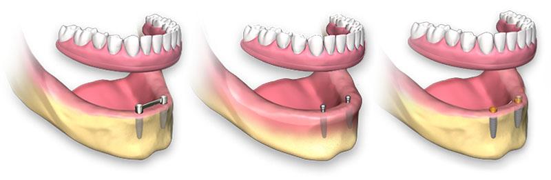 valor-de-implante-01