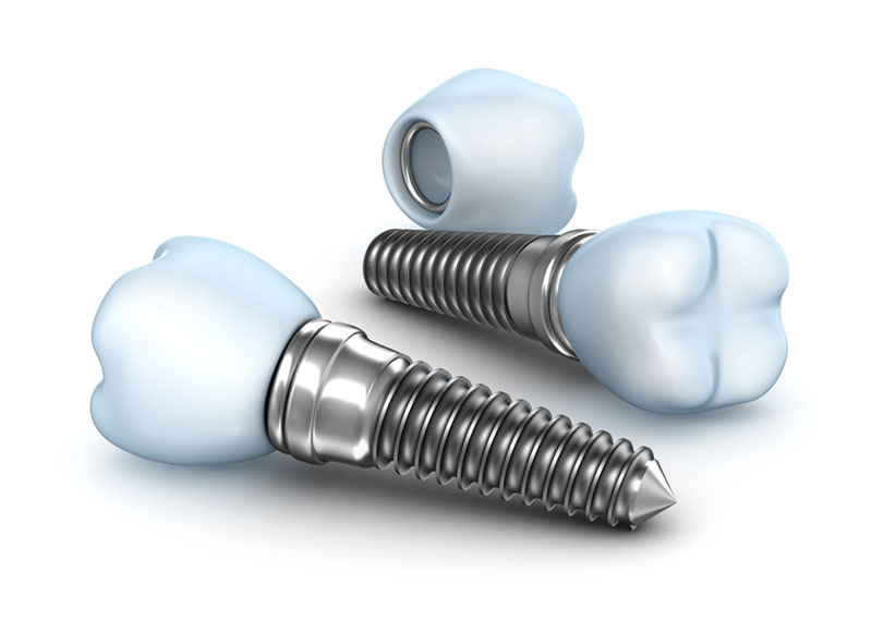 valor-de-implante-02