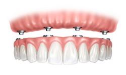 carga imediata implante
