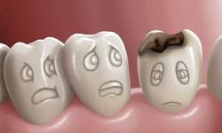 Como aliviar dor de dente furado