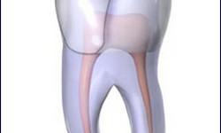 Dente aberto canal