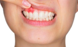 Dente inflamado rosto inchado