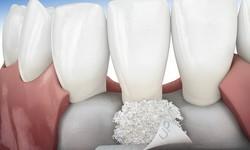Enxerto de osso para implante