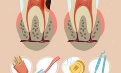 Por que fazer canal no dente?