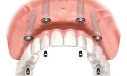 Implante de dentadura