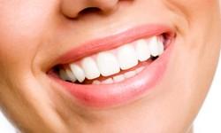 Mancha amarela no dente da frente