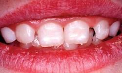 mancha branca no dente de leite