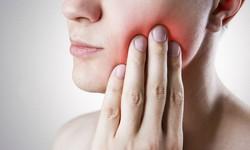 Passar dor de dente