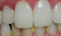 periodontite como tratar