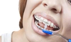 Plano odontológico estético