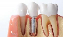 Quanto tempo demora um implante dentário
