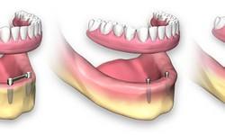 valor de implante