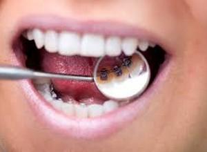 aparelho bucal