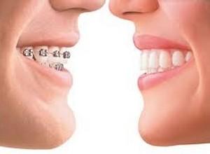 Utilizando aparelho de dente