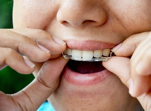 aparelho odontológico móvel
