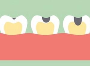 cárie dentaria tratamento
