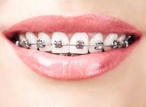 como deixar os dentes branco com aparelho