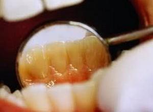 como se forma a placa bacteriana nos dentes
