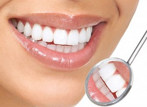 como tirar placa bacteriana dos dentes