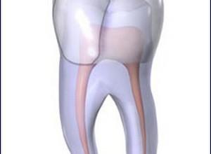 dente aberto dor