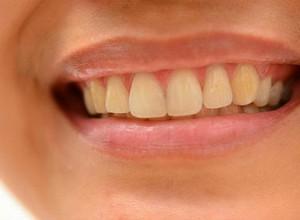 dentes amarelos de nascença