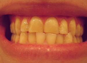 dentes amarelos depois de tirar o aparelho